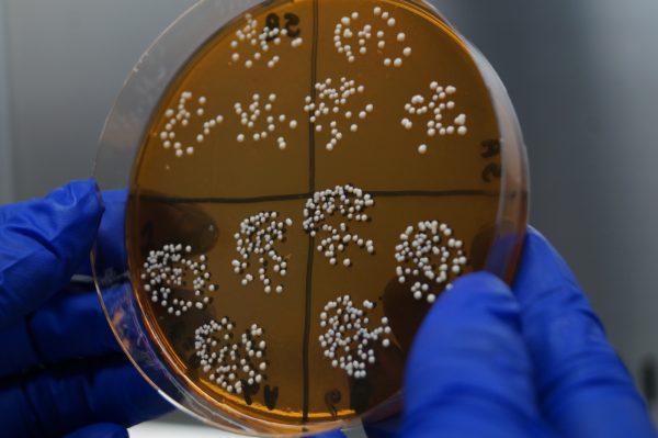 Tipificación de microorganismos